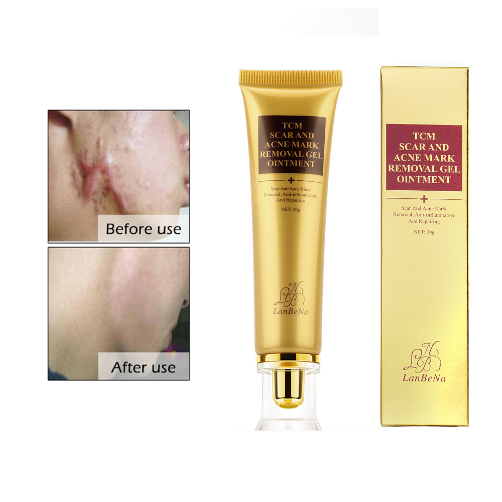 Stretch Marks Remove Acne Scar Treatment Cream Face Whitening Cream Pimple Scar Pregnancy Nourish Postpartum Body Skin Cream