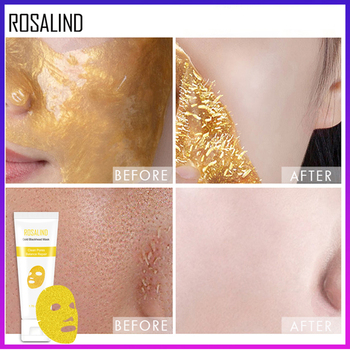 ROSALIND Facial Mask Peeling Blackhead Remedy Remover Mask From Black Dots Anti-Aging Dead Sea Mask Gold Shrink Pore Skin Care 2