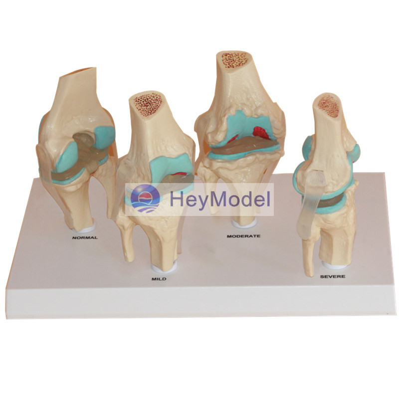 HeyModel Knee Joint Disease Model adjustable knee joint meniscus knee rehabilitation equipment maintenance men and women with a fixed fractures knee ligament reco
