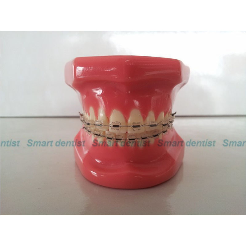 2016 Dental Anatomical Model Natural Size Comprehensive Orthodontic Tooth Model 28 Teeth Metal Brackets 2016 dental orthodontics typodont teeth model half metal half ceramic brace typodont with arch wire
