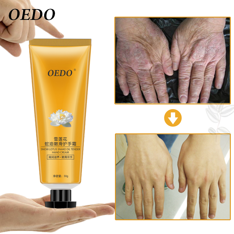 Snow Lotus Snake Oil Tender Hand Cream Skin Care Moisturizing Nourishing Antibacterial Anti-Chapping Beauty & Health цена