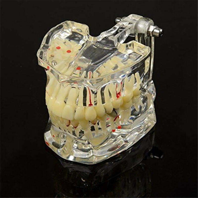 Promotion Dental Study Tooth Transparent Adult Pathological Teeth Model Dental Lab Equipment Dentist  Teaching 1 pc dental orthodontic study model transparent teeth malocclusion orthodontic model with colorful brackets