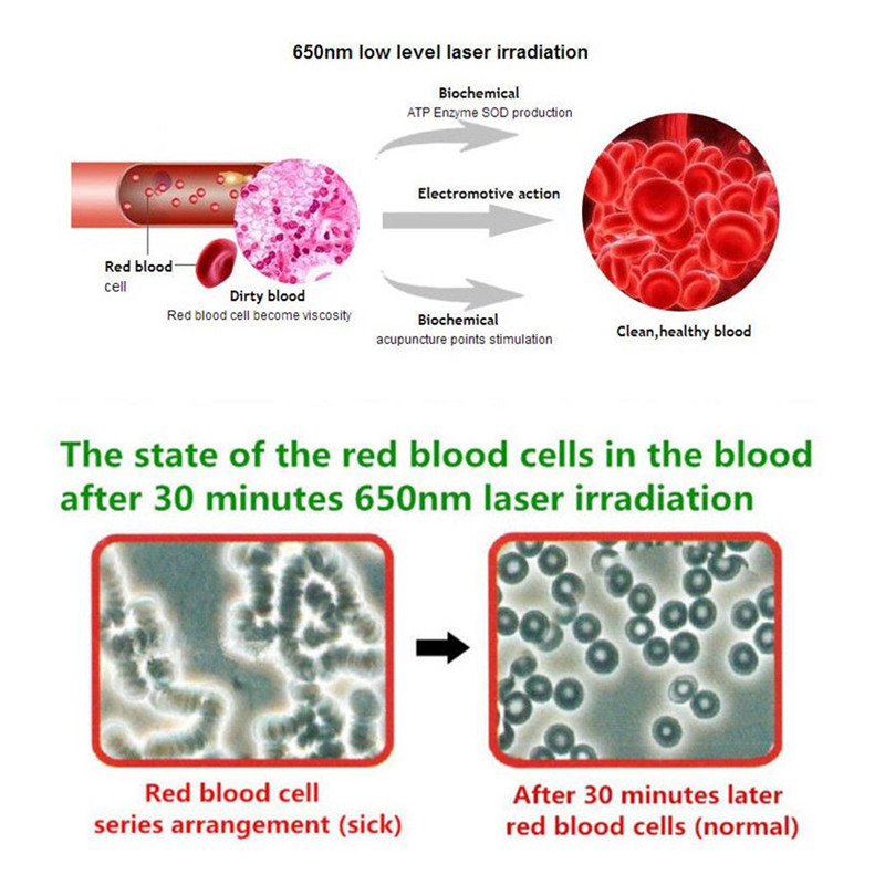 Offerta di fabbrica di Alta Pressione Sanguigna Trattamento Laser Macchina di Pulizia Diodo Lente Ha Condotto La Luce LLLT Basso Livello di Terapia Laser Rosso Blu