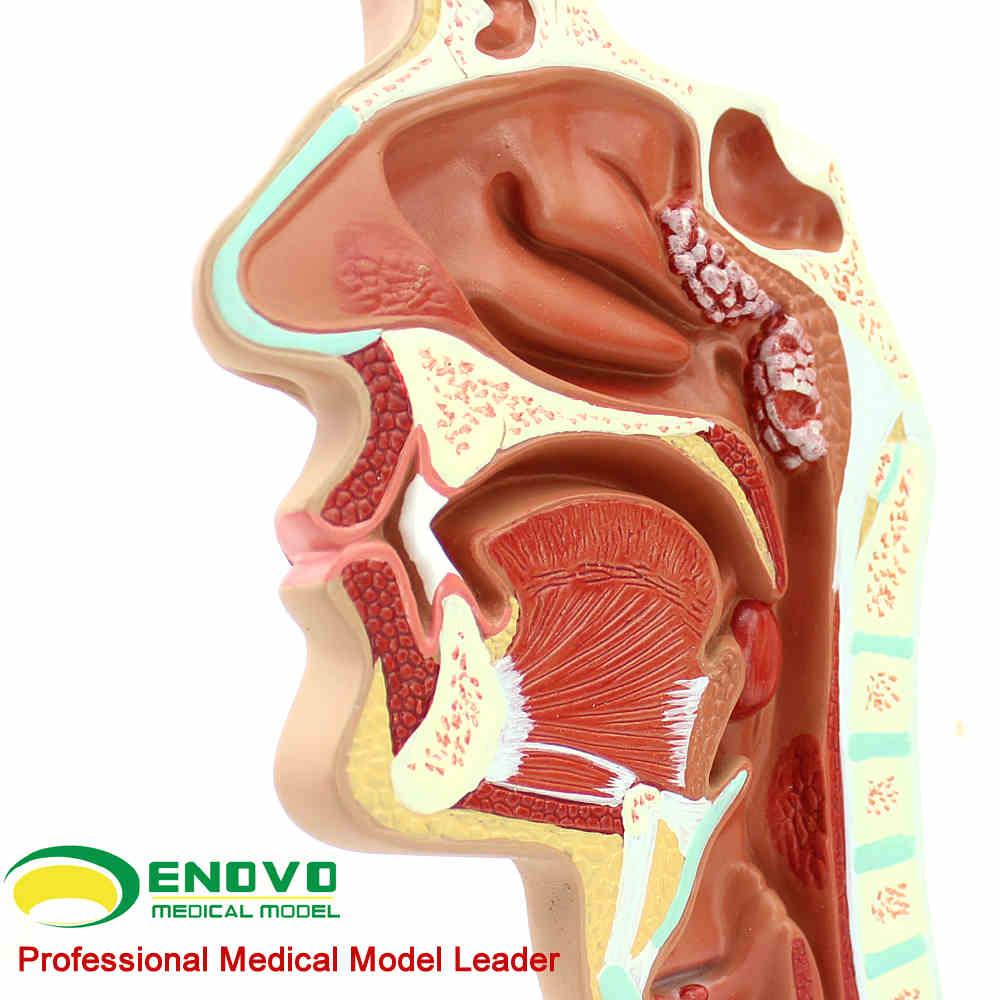 KeyWord: endoscopic model; Department of Respiratory Diseases; ENT ...