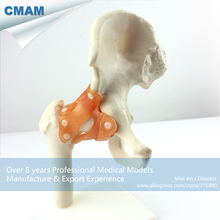 CMAM-JOINT06 Life-Size Hip Joint Skeleton Model,  Medical Science Educational Teaching Anatomical Models