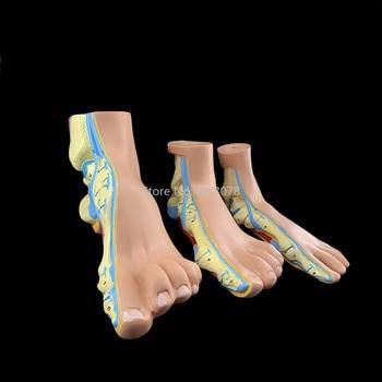 3pcs/set Human foot palm muscle model Normal foot,Flat feet,Bow foot,Foot Combined Anatomical Model
