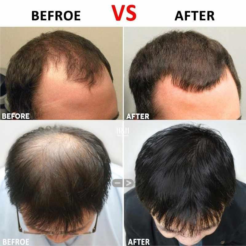 Rolo Da Agulha de titânio para Cuidados Faciais e Crescimento Do Cabelo Anti Perda de Cabelo Tratamento Queda de Cabelo/Carecas/Recuo linha fina