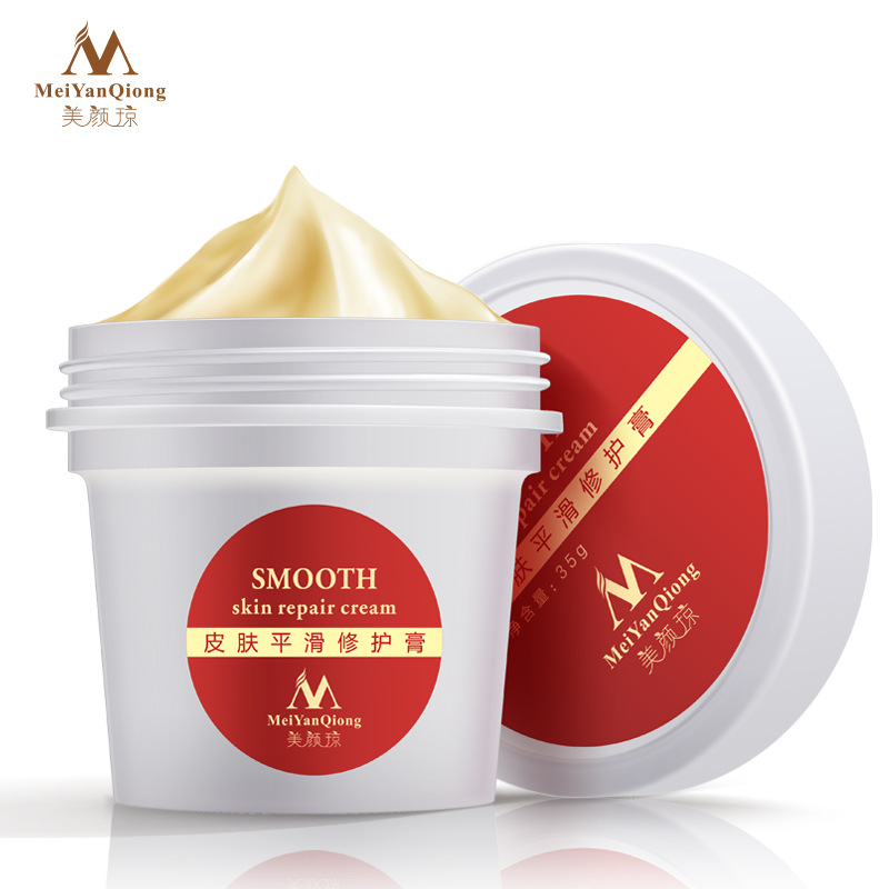 Skin Body Cream powerful stretch marks remover and scar removal postpartum obesity pregnancy face repair cream for body