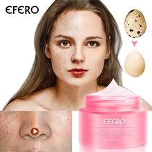 EFERO Skin Whitening Cream Freckle Cream Anti-Aging Remove Melasma Acne Dark Pig