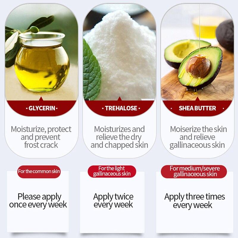 MEIKING Whitening Body Cream Smooth Skin Body Lotion Armpit Whitening Creams Skin Care For Moisturizing Anti-chapping Legs Knees