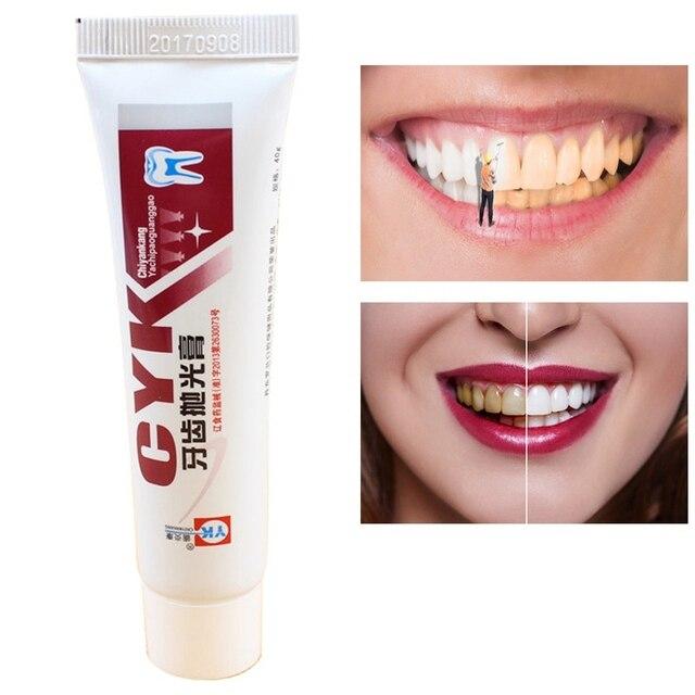 Dental Blanqueamiento Dental pulidora blanqueador de dientes pasta de pulir