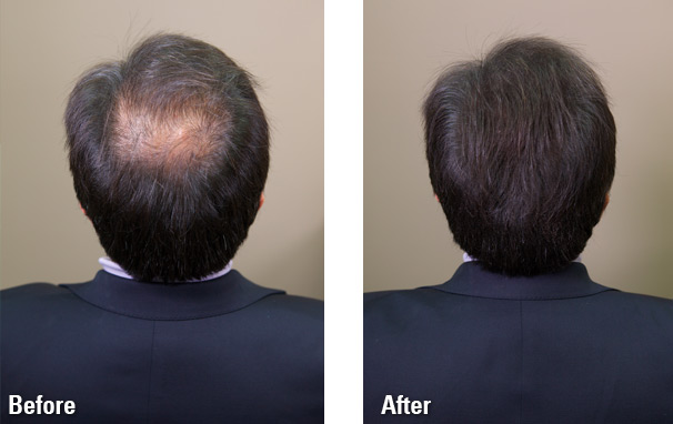 nstant font b Hair b font building fiber font b Hair b font Fiber Thickening Keratin
