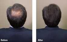 nstant Hair building fiber Hair Fiber Thickening Keratin Hair FiberHair Loss Concealer Keratin only black and dark brown