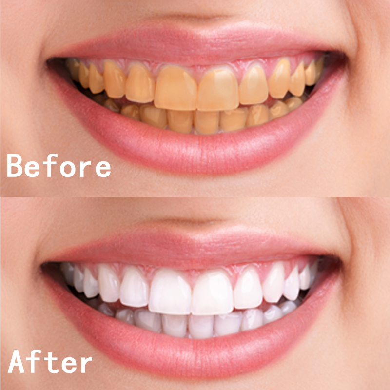 Dental Teeth Whitening Pen Gel Strips Bleach Stain Remover Tooth
