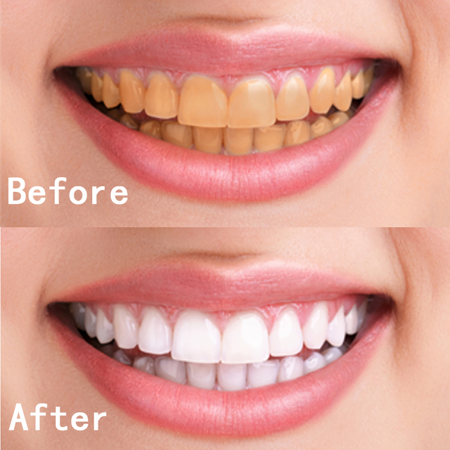 dental teeth whitening pen gel strips bleach stain remover tooth gel instant whitener dental bleaching dental