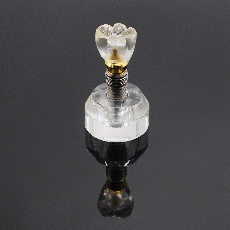 Modèle d'implant dentaire simple dents claires support d'implant couronne 3 pièces dent détachable 1 pcs