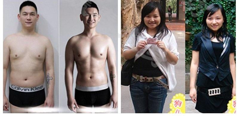 weight loss taking wellbutrin