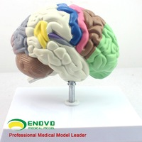 Human Anatomical Model Partition Brain Chamber Hemisphere Telencephalon Model