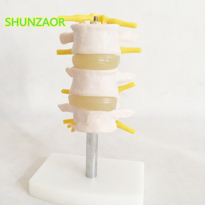 SHUNZAOR 16*9*8cm Lumbar Set (3 pcs) lumbar disc herniation demonstration model,Human lumbar model spinal model