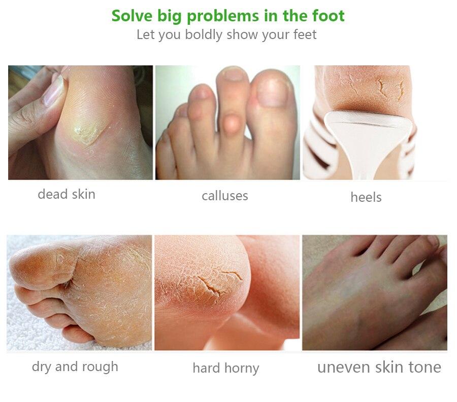 Exfoliating Foot Mask Aloe Foot Mask for Legs Moisturizing Mask Pedicure Socks Remove Dead Skin Heels Scrub Cuticles 4Pcs=2Pack