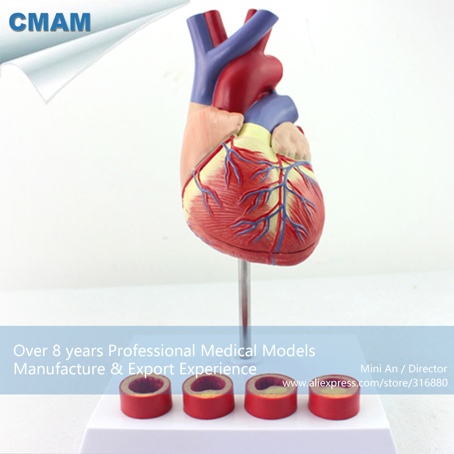 12481 CMAM-HEART05 Thrombosis Cross Section Human Heart Model on Stand,  Medical Science Educational Teaching Anatomical Models 12472 cmam anatomy34 human female pelvis model with removable infant medical science educational teaching anatomical models