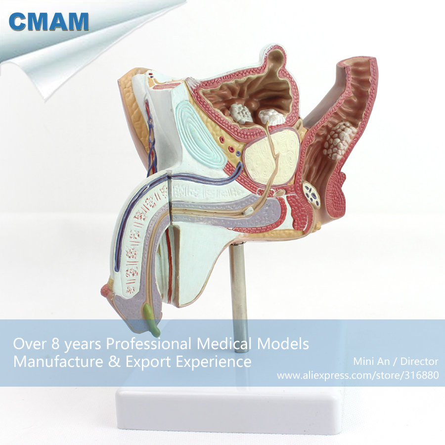 12456 CMAM-ANATOMY18 Pathological Model Male Urogenital Sysstem Anatomy Model, Medical Science Educational Anatomical Models 12437 cmam urology10 hanging anatomy male female genitourinary system model medical science educational anatomical models