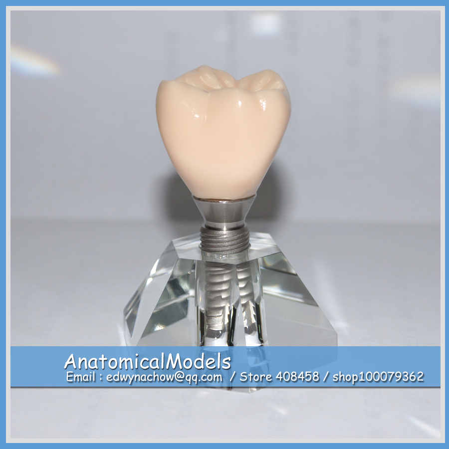 13239 DH2019-1 Three Movable Parts Tooth Implant Demonstration Model, Medical Science Educational Dental Teaching Models dental materials tooth pathology dissection model decayed tooth oral dental teaching model normal tooth gasen rzkq006