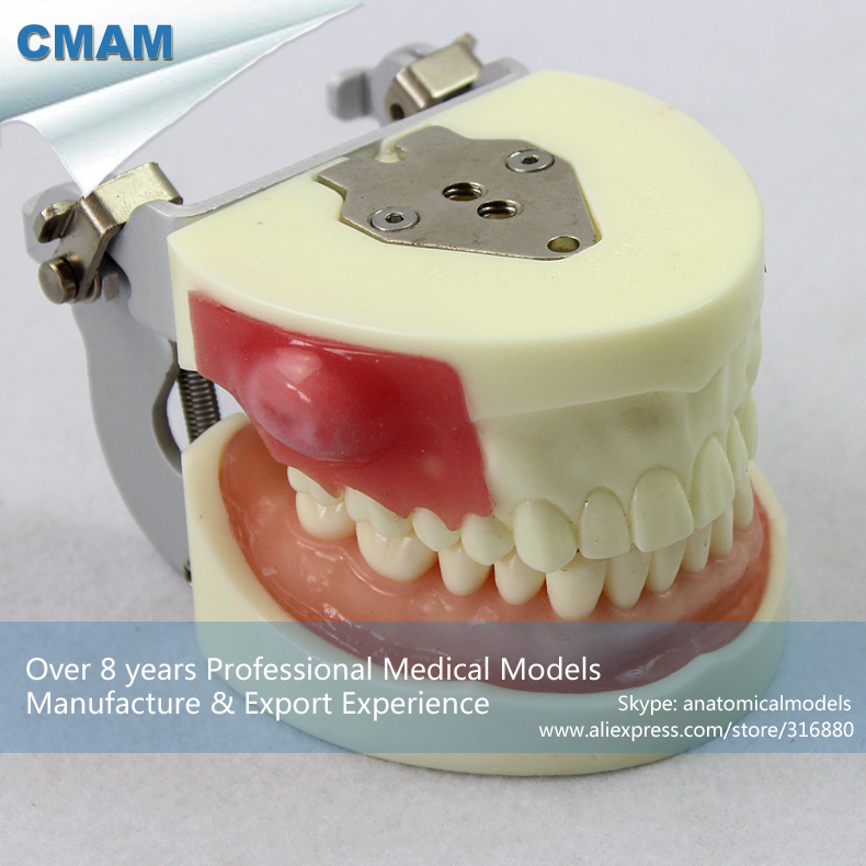 12605 CMAM-DENTAL23 Incision/Pus Removal Model, Patient Education Training model, Dental Model sagitally section model about tissue decomposition model for doctor patient communication model with magnetic