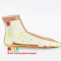Flat foot, flat foot arch collapse model joint anatomy model medical teaching MJRJ003