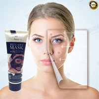 Face Care Acne Scar Removal Mask Acne Spots Skin Care Treatment Skin Whitening Remove Acne Face