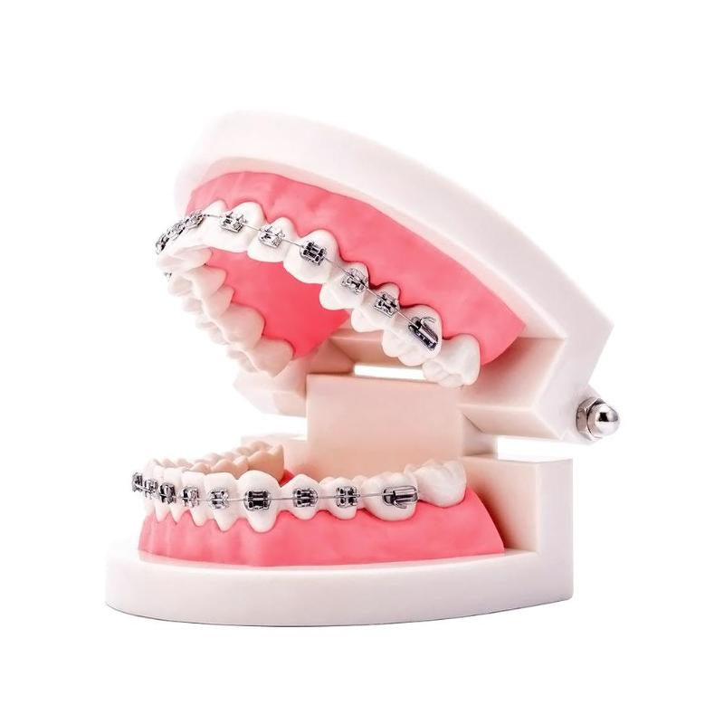 Dental Orthodontic Teeth Model With Ortho Metal Ceramic Bracket Arch Wire Buccal Tube Teaching Model Orthodontic Tools