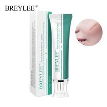 BREYLEE Acne Scar Removal Cream Face Skin Repair Care Treatment Remove Stretch Marks Whitening 30g