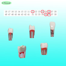 4 pcs/set Endodontic Practice Model for RCT Practice Transparent Resin with Dyed Root Canal