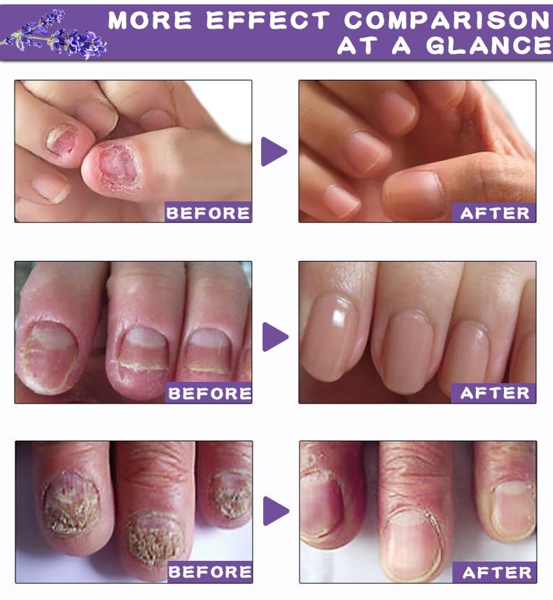 Cheap Tratamentos de unhas