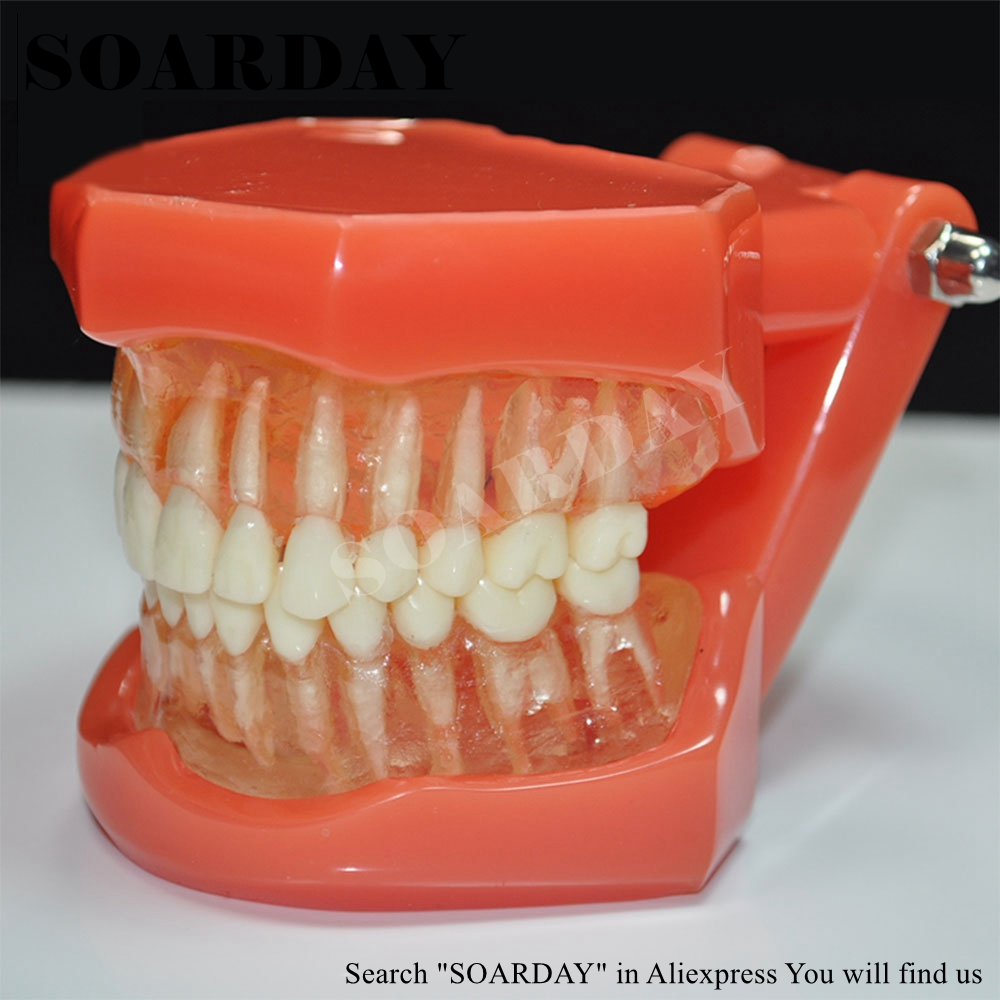 SOARDAY Standard Teeth Model Tooth Removable Dental Teaching Communication Model sagitally section model about tissue decomposition model for doctor patient communication model with magnetic