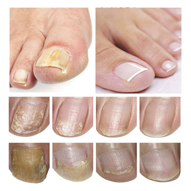 New 15ml Nail Fungal Treatment With File Anti Fungus Onychomycosis Removal Nails Care Repair Liquid 998