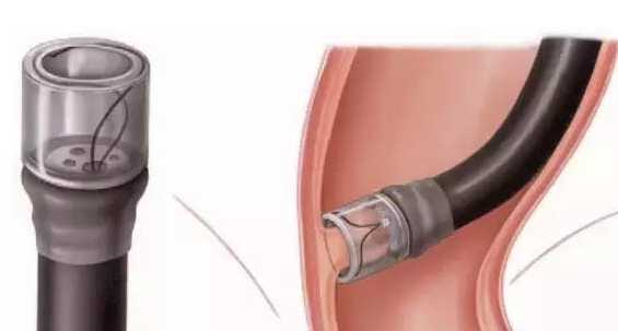 For Repetitive Transparent Mucosal Suction Sleeve High-frequency Electric Knife Cable  Maj-813 Synchronization Line MAJ-1530For Repetitive Transparent Mucosal Suction Sleeve High-frequency Electric Knife Cable  Maj-813 Synchronization Line MAJ-1530