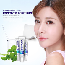 New Arrival Park Springs ya go incognito acne scar cream Acne Indian acne oil control shrink pores men and women face network ex omy lady one spring acne cream acne printed men