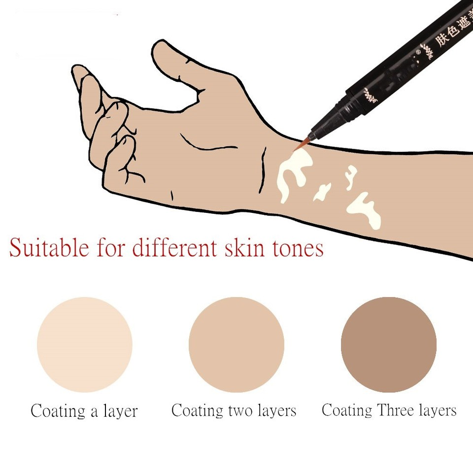 Hidden Skin Vitiligo Waterproof Long Lasting Natural White Spots Camouflage Makeup Pen On Face Arm Body For Women Men Aliexpress