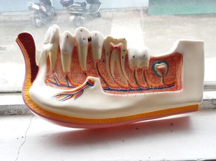 human model Orthodontic model Dental implant models Adult gingiva is decomposed цены онлайн