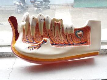 human model Orthodontic model Dental implant models Adult gingiva is decomposed
