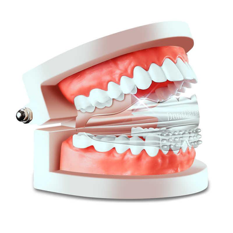 Myobrace Teeth Alignment Caps Tooth Orthodontics Braces Dental Veneers Anti Molar Orthotics Retainers Tooth Cap Teeth Whitening