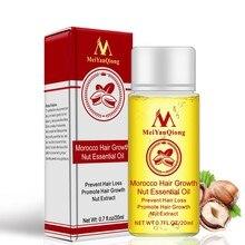 New 20ml Men Women Moroccan Hair Growth Nut Essential Oils Hair Faster Grow Oil