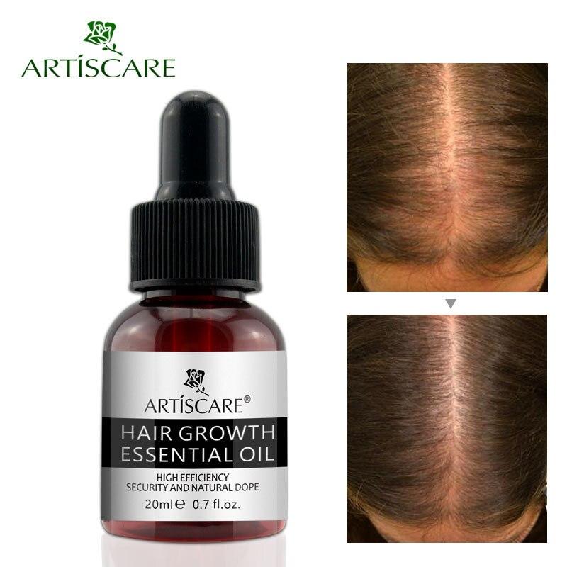 Herbal Hair Growth Essential Oil Anti Hair Loss Promote Thick Fast Hair Growth Treatment H