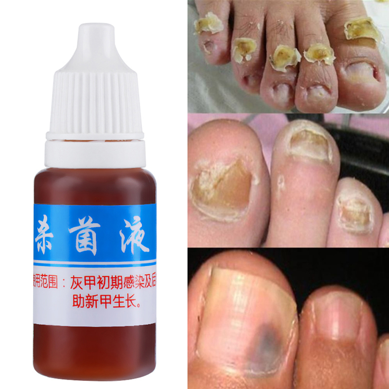 Aliexpress.com : Buy 10ml Herb oil Effective Fungus Nail Removal ...
