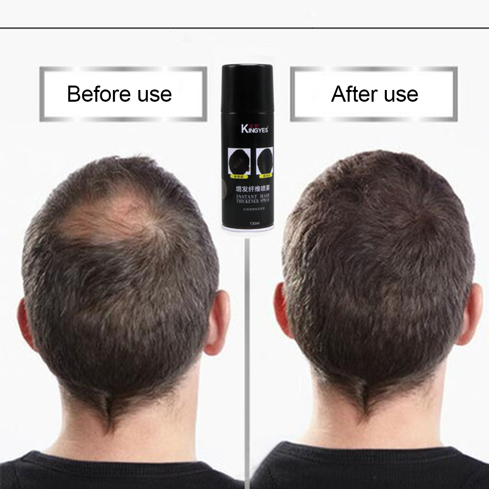 Hair Care & Styling Confident 130ml Fast Hair Extension Fibers Hair Building Spray Cover Thicken And Regrowth Anti Hair Loss Products Mefapo Hair Care Save 50-70% Back To Search Resultsbeauty & Health