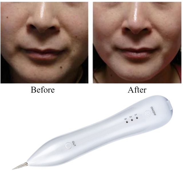 Freckle Tattoo Spot Mole Removal Pen Replaceable Needles