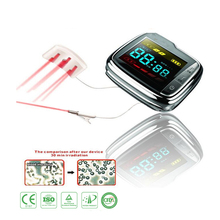 18 laser diodes Wrist Physical Therapeutic Watch for treating hyperviscosity, hyperlipidemia and diabetes