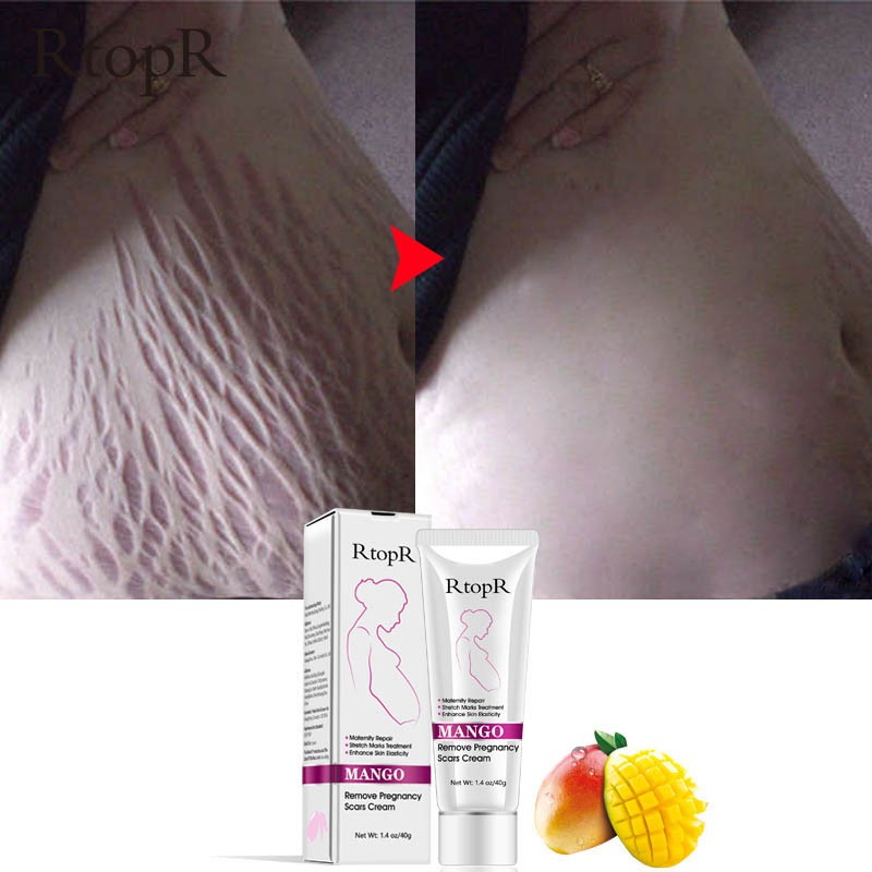 Natural Mild Non-irritating Mango Stretch Mark Cream For Pregnancy Repair Scar Slack Line Abdomen Stretch Marks Cream