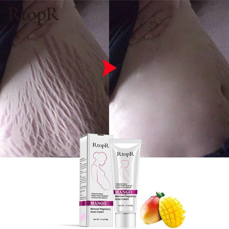 Natural Mild Non Irritating Mango Stretch Mark Cream For Pregnancy